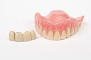 festsitzender und herausnehmbarer Zahnersatz